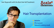 Best Hair Transplant Clinic in Hyderabad